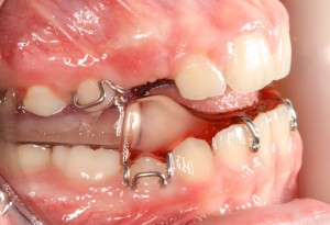 buccal view with twin blocks cropped